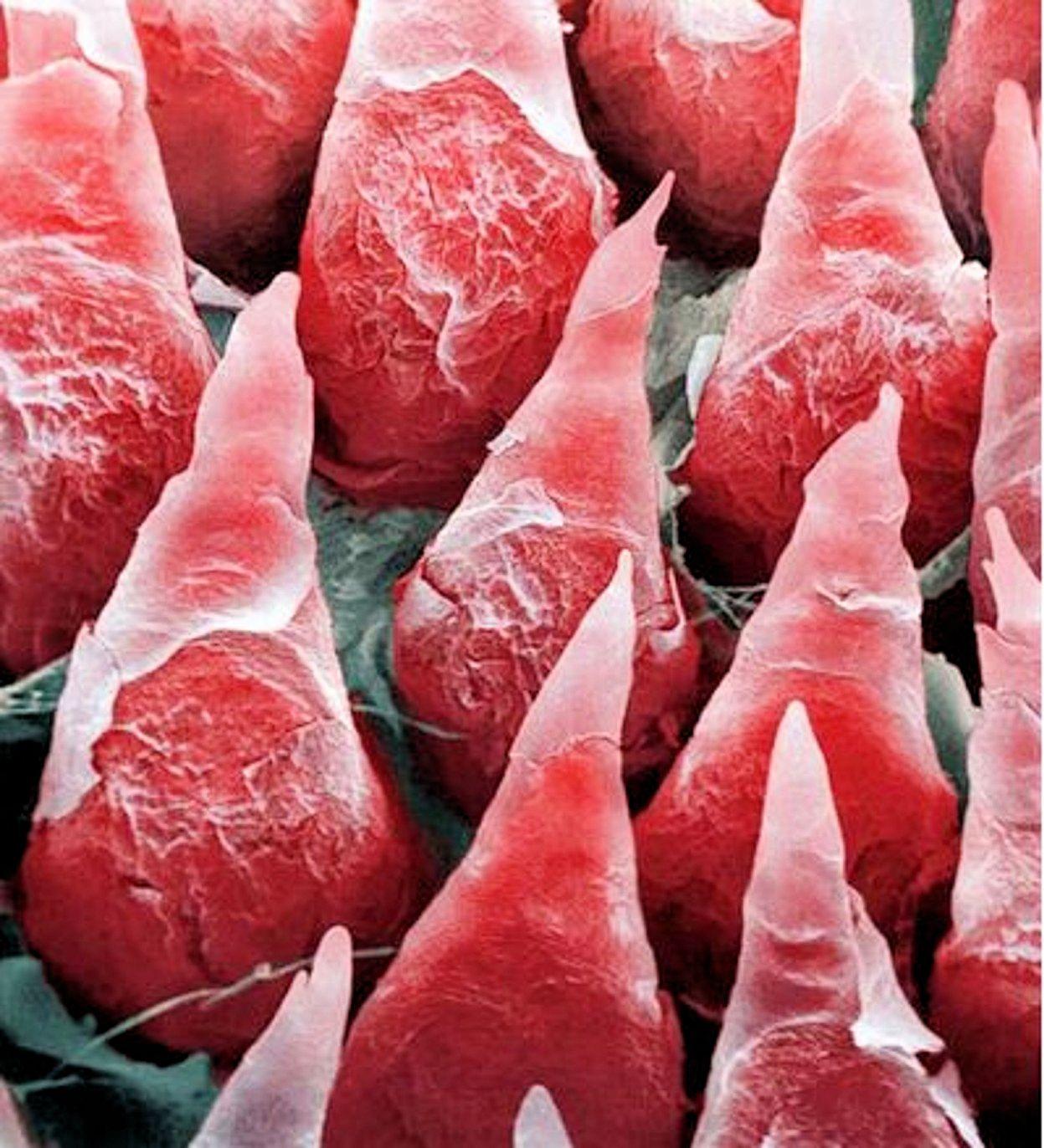 Сперма фото под микроскопом 1 фотография